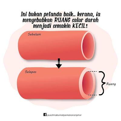 GARAM punca utama darah tinggi