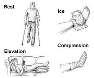Rest, Ice, Compression, Elevation RISE