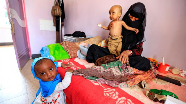 Guerra saudí provoca desórdenes mentales en 80 000 niños yemeníes