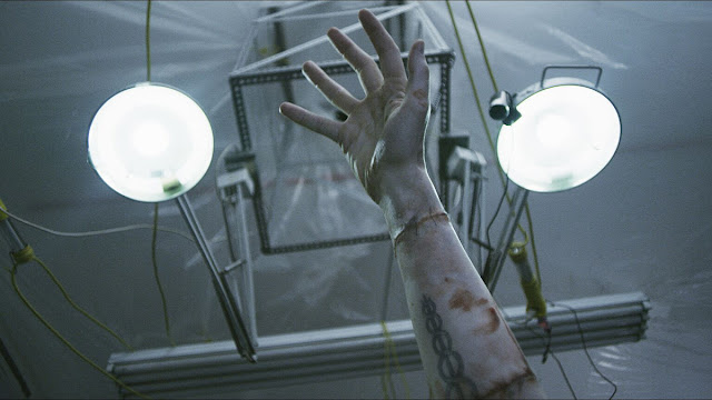reaching hand and surgical lights