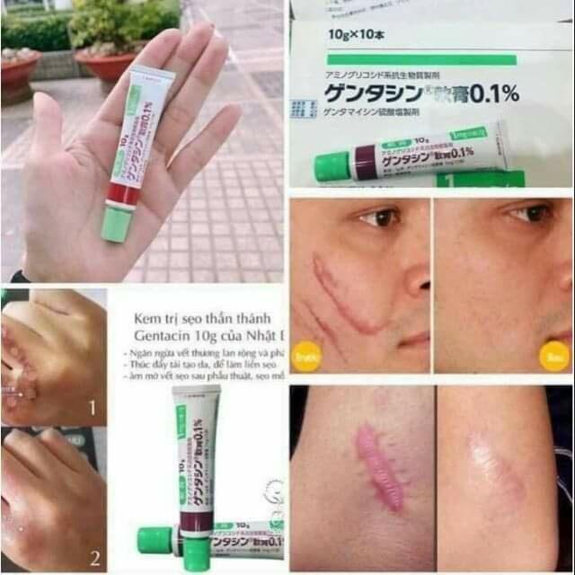 Kem trị sẹo thần thánh Gentacin 10g tốt nhất của Nhật Bản 1