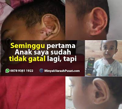 Minyak Varash Classic untuk Gatal di telinga Anak