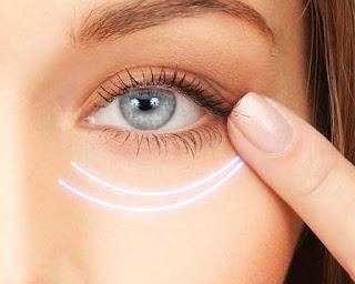 pareri depigmentare cearcane maronii in jurul ochilor