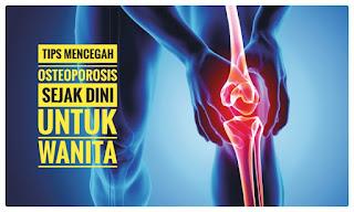 Osteoporosis mencegah untuk wanita