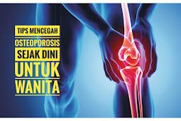 Pentingnya mencegah osteoporosis sejak dini bagi wanita