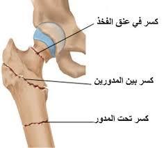 انواع الكسور وطرق علاجها وكيفيه التعامل معها ( اجيال الاندلس )