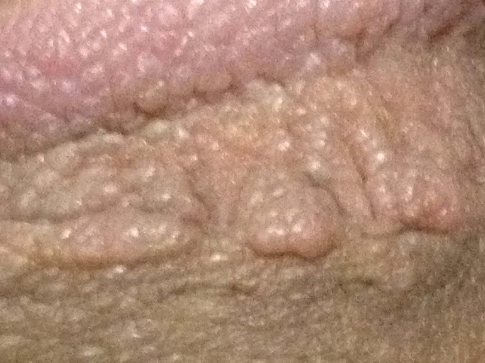 What Does A Genital Wart Look Like On A Male