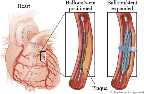 Coronary angioplasty may also be referred to as stent insertion.