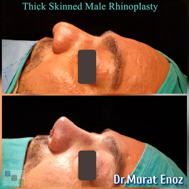 Male Nose Job,Thick Skinned Male Rhinoplasty,Rhinoplasty in Men Istanbul,