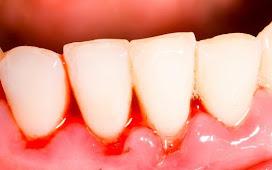 Chảy máu chân răng nguyên nhân và cách điều trị