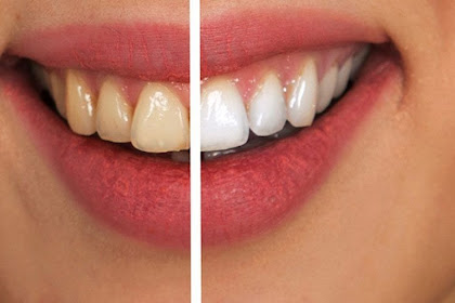 Dental Veneers in Turkey and Dentist Costs