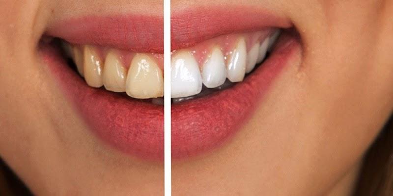 Dental Veneers in Turkey and Dentist Costs