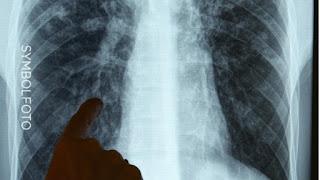 Заболеваемость туберкулёзом