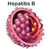 Pengertian Hepatitis B Beserta Pencegahannya