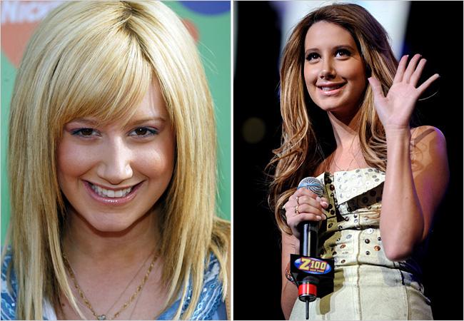 Overdose: Celebrity Plastic surgery (Part 2)