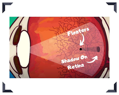 eye-floaters-muscae-volitantes