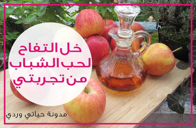 خل التفاح لحب الشباب