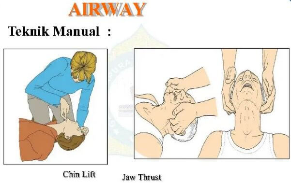 Airway initial assessment