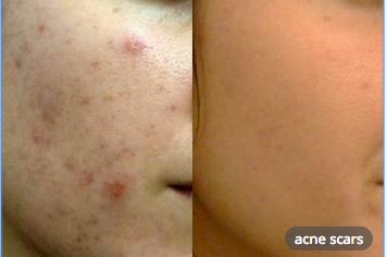 laser treatment acne scars malaysia