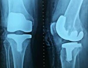 tips menjaga lutut sehat