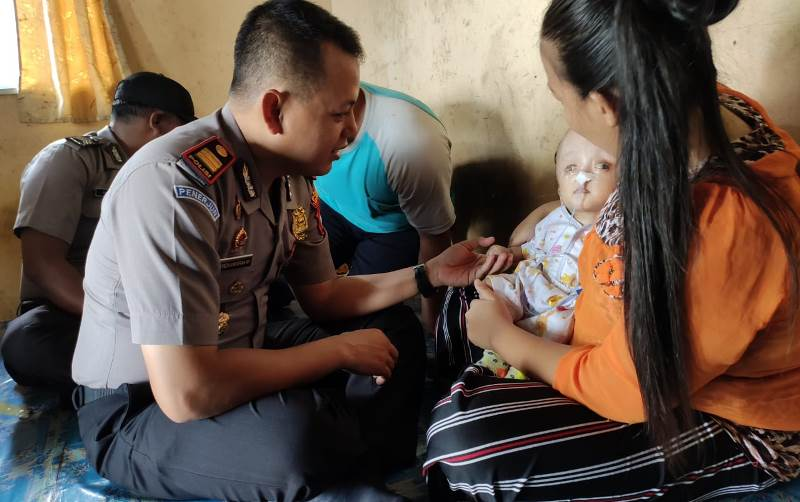 Polres Tanjungpinang Beri Bantuan pada Anak Pengidap Hidrosefalus