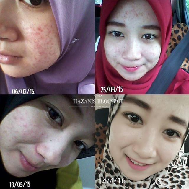 testimoni suspa beauty