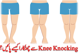 How to treat knee knocking?