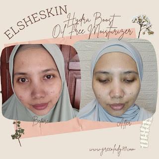 review- elsheskin-hydra-boost-oil-free-moisturizer