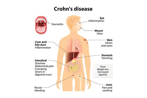 It is one type of a condition called inflammatory bowel disease (IBD)