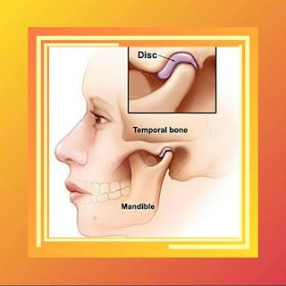 TMJ (Temporomandibular Joint)