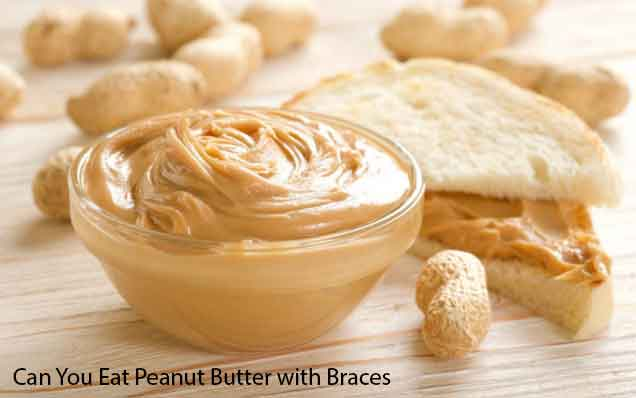 Can You Eat Peanut Butter with Braces