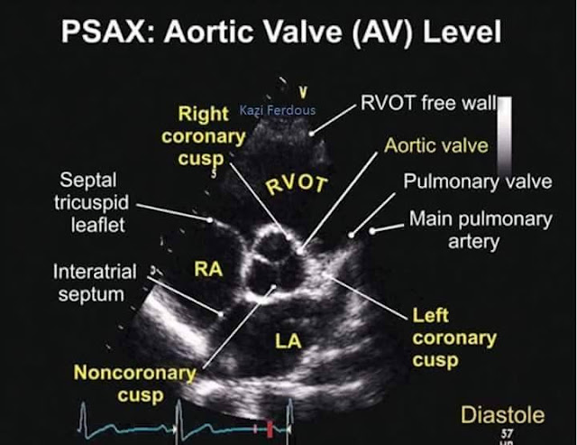 Parasternal Short Axis View (PSAX) at the level of Aortic Valve (AV)