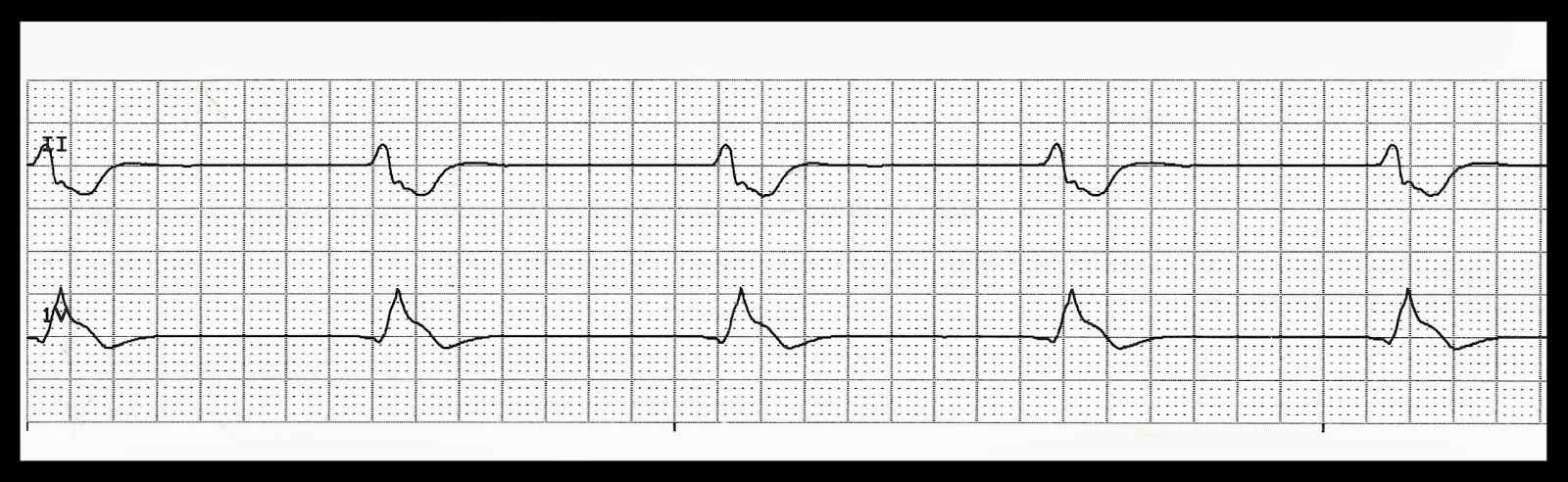 Fine Ventricular Tachycardia