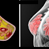 Discover the 5 Unconventional Signs of Breast Cancer