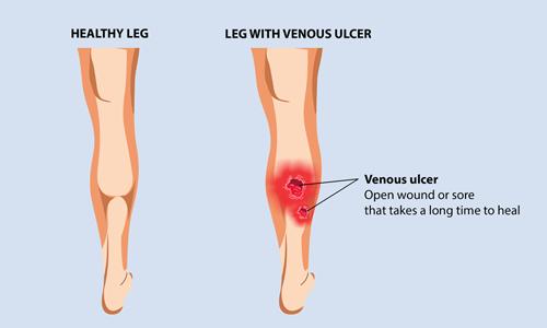 Understanding Leg Wounds