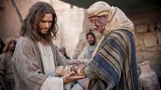 Yesus, Orang Kusta, Sikak Yesus, Yesus dan Orang Kusta