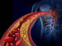 Alternative medicine for cholesterol