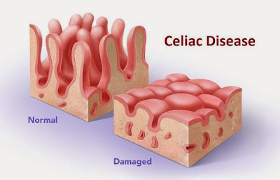 What is Celiac Disease? Learn the signs and symptoms.