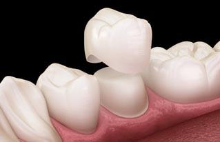 اسعار تركيب الاسنان الزيركون والبورسلين