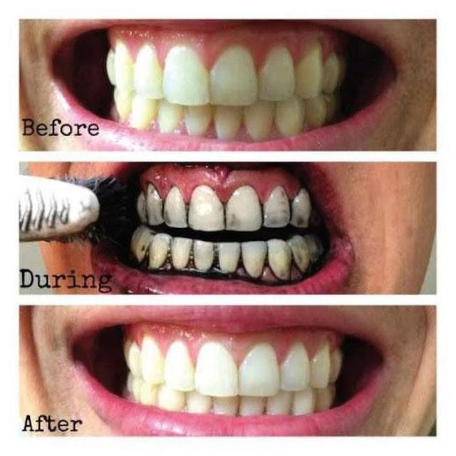 Recette de dentifrice blanchissant à base de noix de coco et de charbon végétal