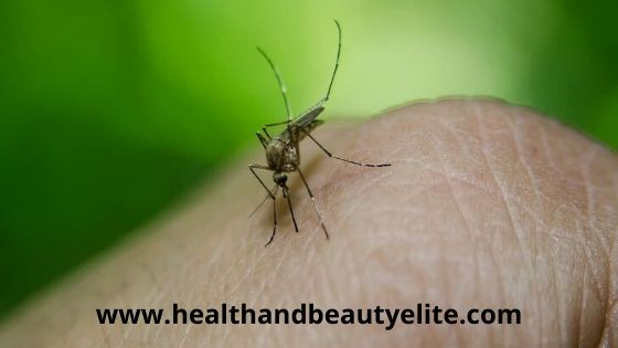 best remedy for mosquito bites