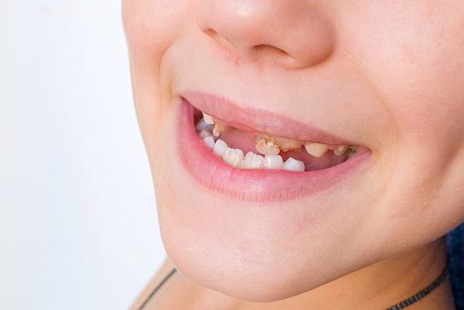 أسباب تسوس الأسنان اللبنية
