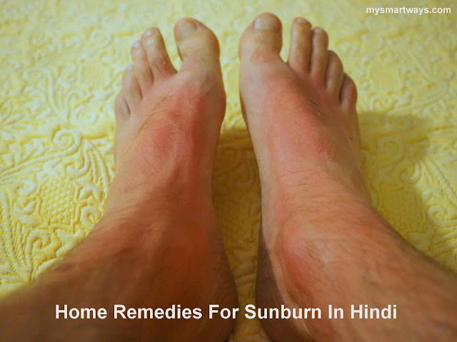 Home Remedies For Sunburn Treatment At Home In Hindi