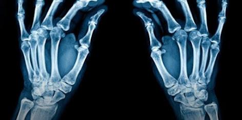 ما هي الأشعة السينية X-Rays