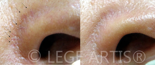 Nose redness and dilated thread veins (capillaries). Results after one BBL session.