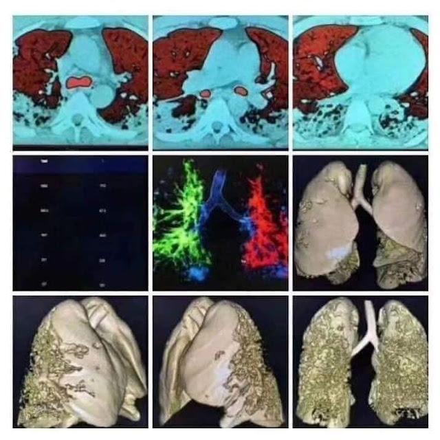 Khi virus Corona xâm nhập vào cơ thể và ăn sạch phổi của con người