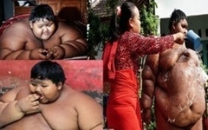 World's fattest child in Indonesia
