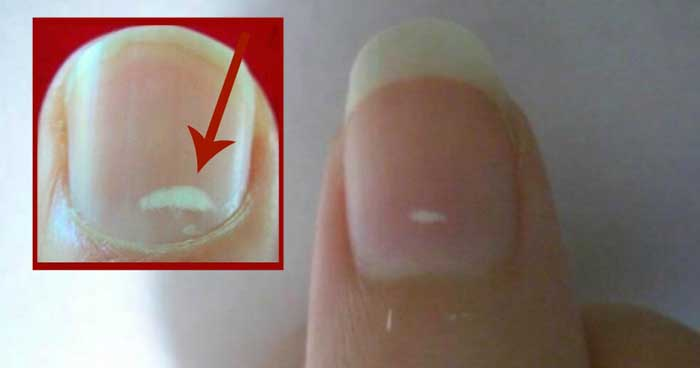 What Causes White Spots on Fingernails?