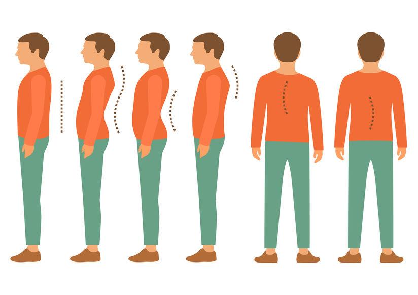脊椎側彎, 脊椎側彎背架, 脊椎側彎矯正, 姿勢體態矯正, 骨盆歪斜