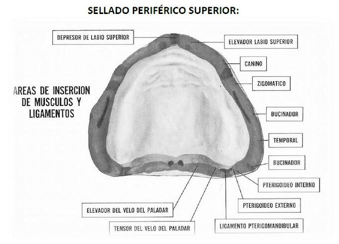 PDF: El sellado periférico en Prótesis Total